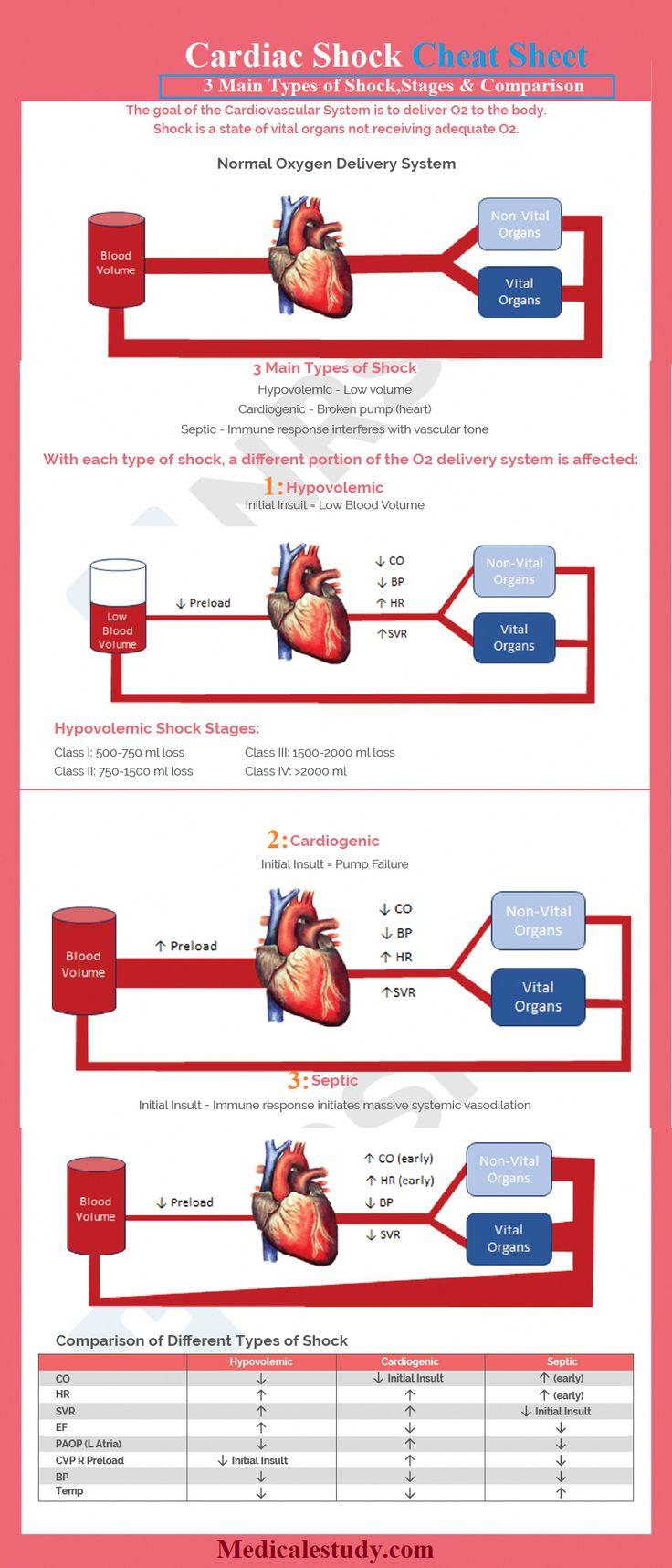 shock types stages comparison cheat sheet nursing medical cardiac certification nurse medicalestudy heart care program mitral four mnemonics programs lpnnurse