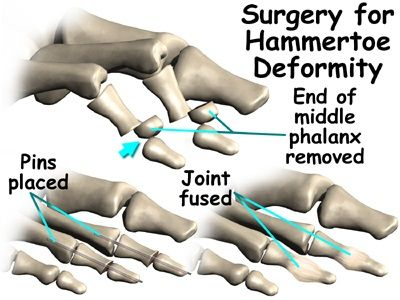 A PATIENT'S GUIDE TO CLAW TOES AND HAMMERTOES http://www.kazmerfootandanklecenters.com/services/hammer-toes