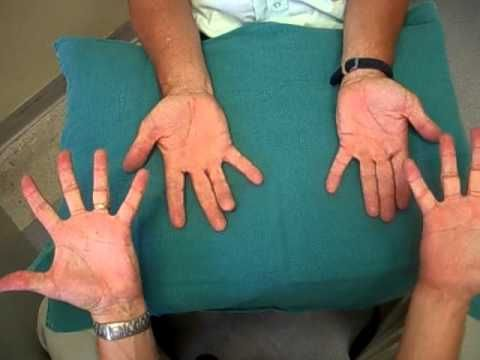Ulnar Nerve Palsy Occupational Therapy for Adults Occupational