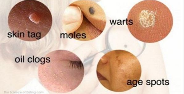 What is an inevitable part of the life of each person is the growth of moles, warts, skin breakouts, clogged pores, blackheads, skin tags and other issues connected to the skin. The main cause for all of these issues is either a hormonal disbalance or a significant change in the lifestyle. And even though there …