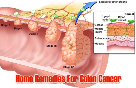 Home Remedies To Prevent Colon Cancer How to use home remedies to prevent the colon cancer? Colon cancer, much the same as other forms of cancer, can be fatal if not prevented at the oppor...