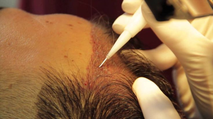 FUE Hair Transplantation Placement