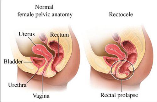 medicine for rectal prolapse