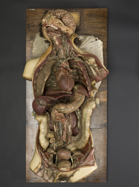 Morbid Anatomy: Care and Conservation of Early 19th Century Wax Anatomical Models.