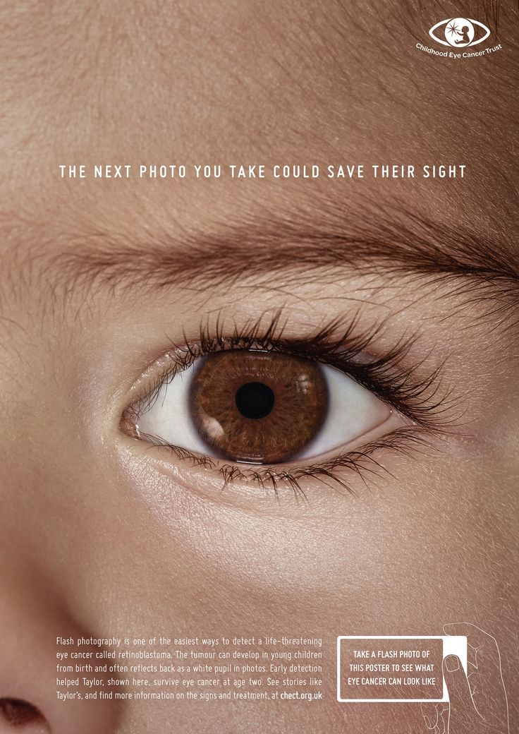 Flash Photo Posters   Advertising Poster Design for Health & Wellness Inspiration   Award-winning creative social good campaigns   Childhood eye cancer symptom awareness   D&AD Impact