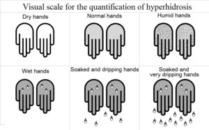 Hyperhidrosis-- is a condition characterized by abnormally increased sweating, in excess of that required for regulation of body temperature. Hyperhidrosis can be associated with a quality of life burden from a psychological, emotional, & social perspective. It has been called by some 'the silent handicap'. Both the words diaphoresis and hidrosis can mean either perspiration (in which sense they are synonymous with sweating) or excessive perspiration, in which