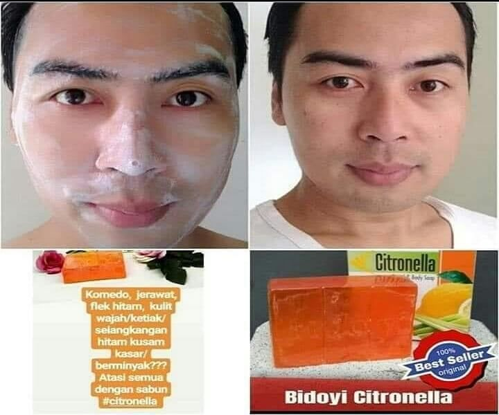 Tips Memilih Sabun Wajah Untuk Wajah Berjerawat