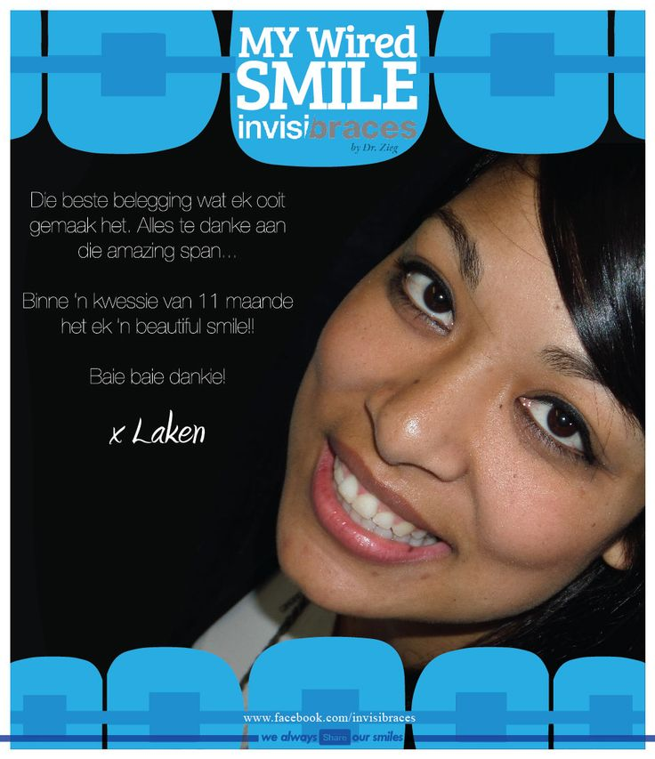 Invisibraces by Dr. Zieg #Orthodontist www.facebook.com/invisibraces