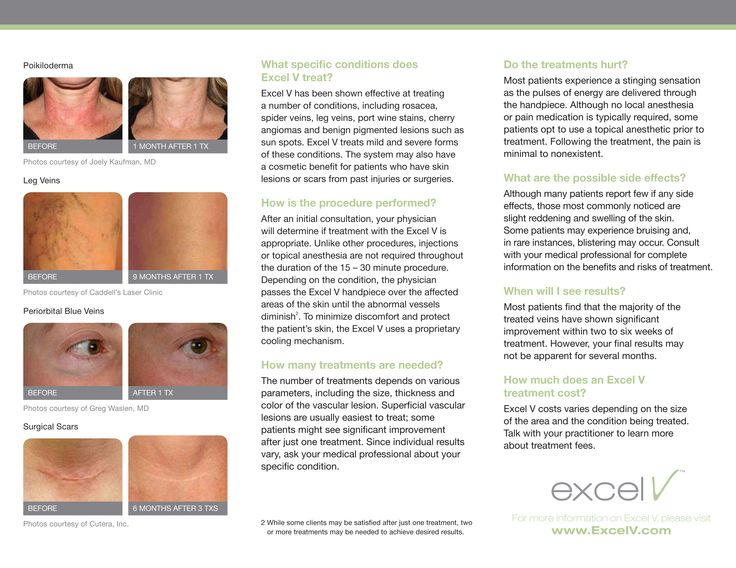 1000 Images About Cutera Excel V Cosmetic Laser On