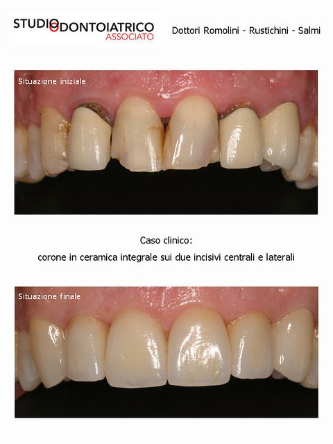 Caso Clinico | Flickr : corone in ceramica integrale sui due incisivi centrali e laterali - Clinical Case | Flickr: all-ceramic crowns on both central and lateral incisors