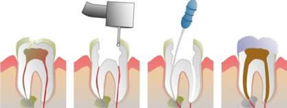 Very few things are as durable as a natural tooth. However, extensive decay, an accident, fracture, or gum disease can lead to a tooth infection that can threaten to destroy a healthy tooth. When a tooth's nerve chamber becomes infected, a root canal treatment is often the only way to save the tooth. http://www.morganrogersdental.com/dental-services/general-dentistry/root-canal.html