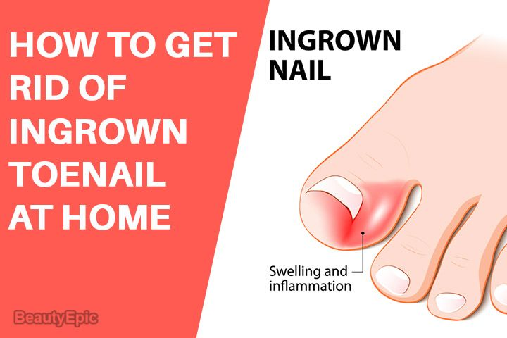 8173e80a92f1f744eedcf3790ae7f1a9 - How To Get An Ingrown Toenail Out Without It Hurting
