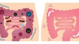 Nettoyage gastro-intestinale : un guide complet pour débusquer de vieilles incrustations fécales