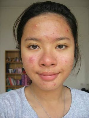 Overnight pimple remedy - mix 1 tsp baking soda & dab of WHITE toothpaste, spackle over breakout area, sleep = pimple 1/3 original size