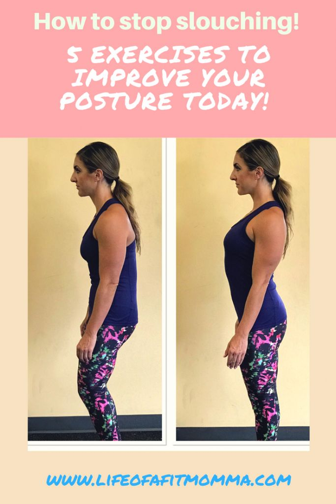 how to stop slouching neck