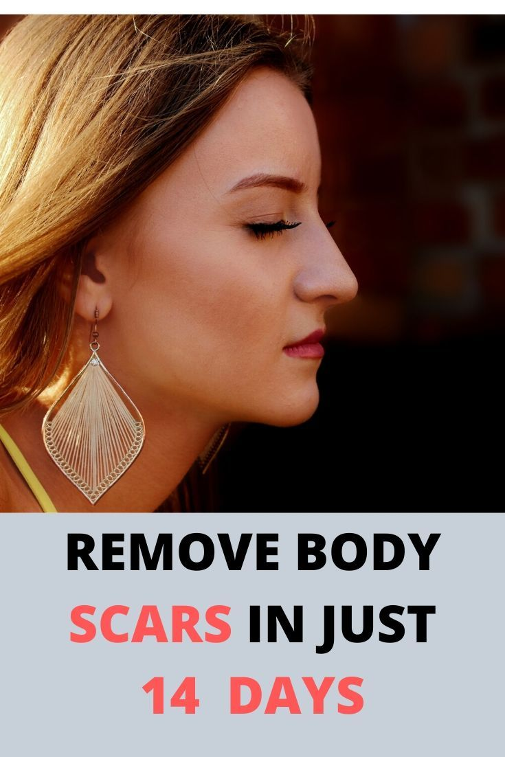 Get Back Your Natural Skin Revitol Scar Cream Review In 2020