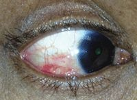 Review of Optometry® > Scleritis: When a Red Eye Raises a Red Flag