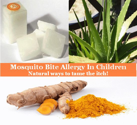 Mosquito Bite Allergy - Natural Remedies For Children Click http://www.life-livewell.com/health/mosquito-bite-allergy-in-children