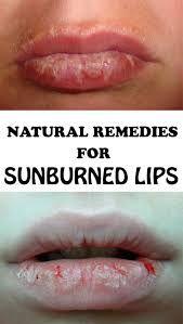 How to Settle Sunburned Lips Naturally