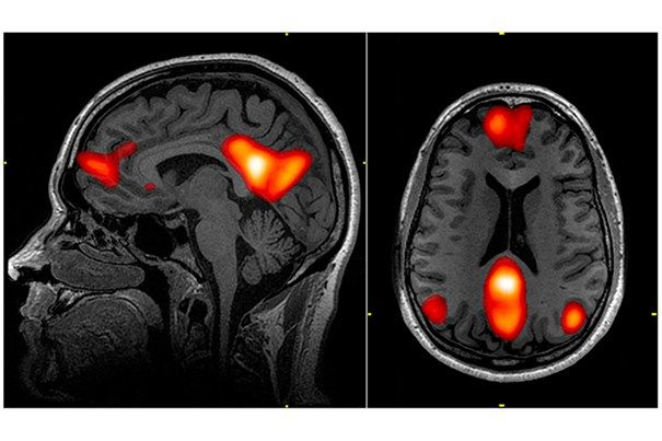 Functional magnetic resonance imaging (fMRI) and electroencephalography (EEG) may be able to identify ICU patients with severe traumatic brain injuries who have a level of consciousness not revealed by the standard bedside neurological examination. A report from Harvard-affiliated Massachusetts...