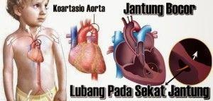 Pengobatan Jantung Bocor Secara Herbal