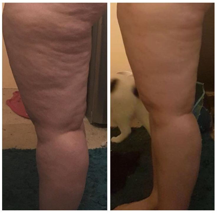"You might be surprised to hear that, while #cellulite has been referred to as a ""fat problem"", recent science has helped us pinpoint that the real cause is distorted #fascia! Fascial adhesions pull down on the skin causing the dents and dimples we call ""cellulite"" which can be smoothed out with the #FasciaBlaster.  Learn about fascia, its role in cellulite, and more here."