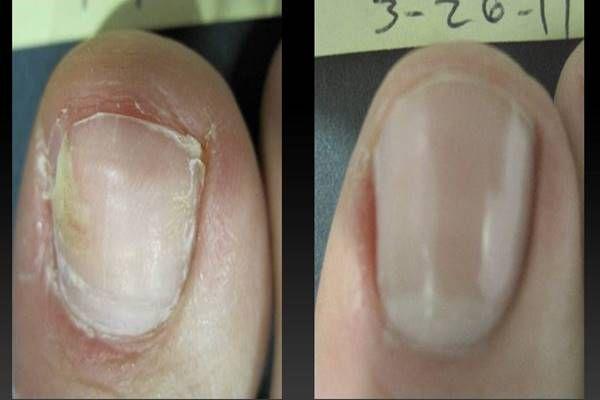 A gombás körömfertőzés kezdetén a kéz- vagy lábköröm szabad széle meg…