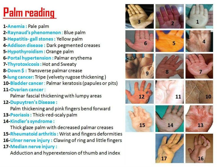 Palm Readings Here!! Before you think I am going to tell you that you will be whisked away to a tropical island paradise with a handsome stranger, look at this poster, it shows how many illnesses and diseases can be seen, right here, in the palm of your hand. If you think your hands look weird, this guide can show you what it might be, or set your mind at ease. If you see any signs like this, make a Dr. appointment right away.