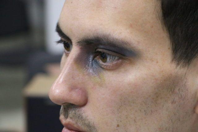 Как убрать синяки под глазами у мужчин