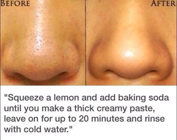 DIY Blackhead remedy | How to get rid of blackheads fast and naturally