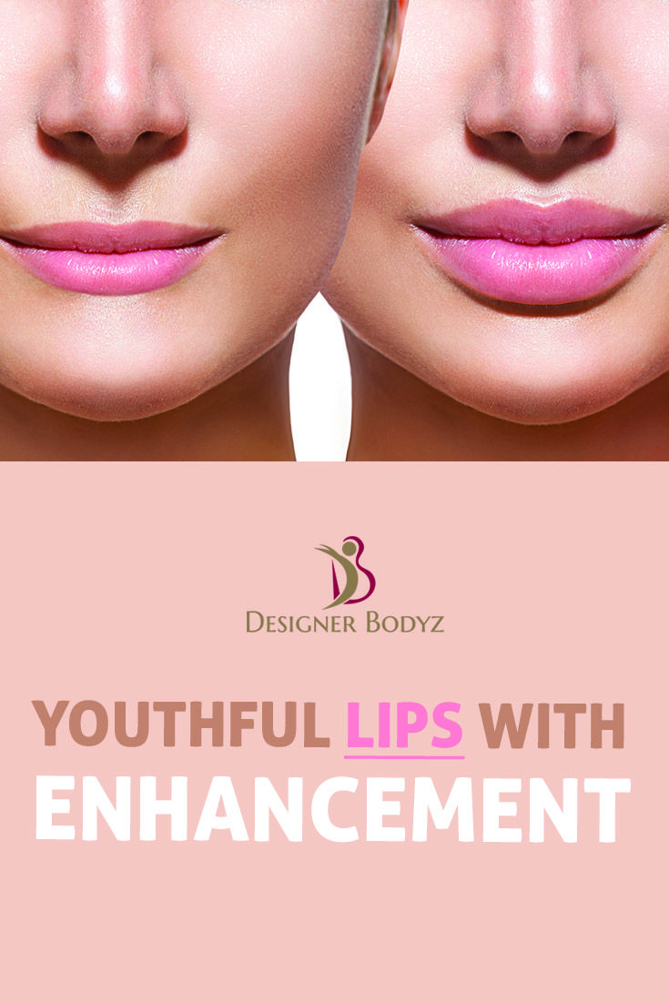 Lip augmentation increases the fullness of the lips, using one of a variety of surgical or minimally invasive techniques. For More :www.designerbodyz.in #Lipaugmentation #lipenhancement #youthfullips #beauty