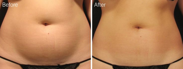 Target the afected areas and get incredible results after you #remove your #celllulite
