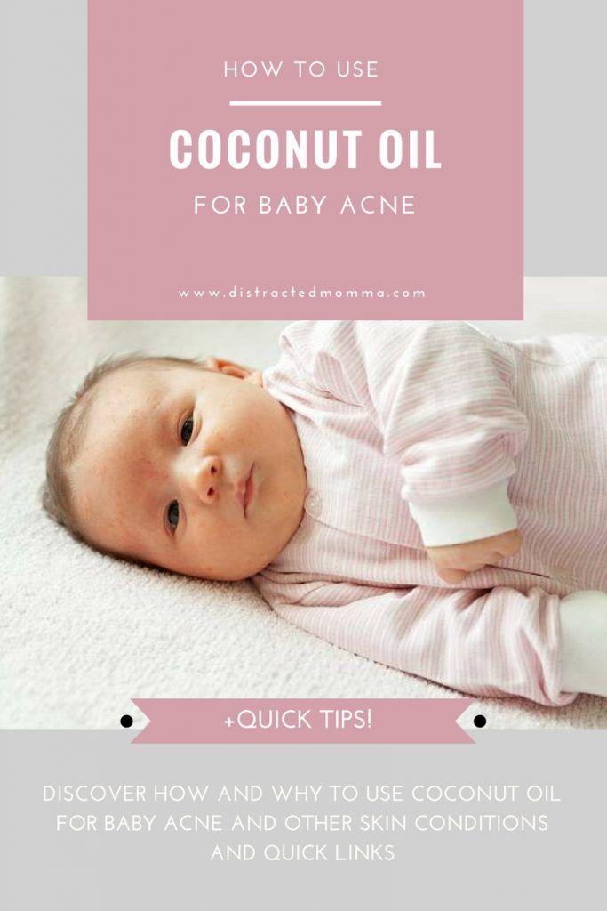 coconut oil for baby acne