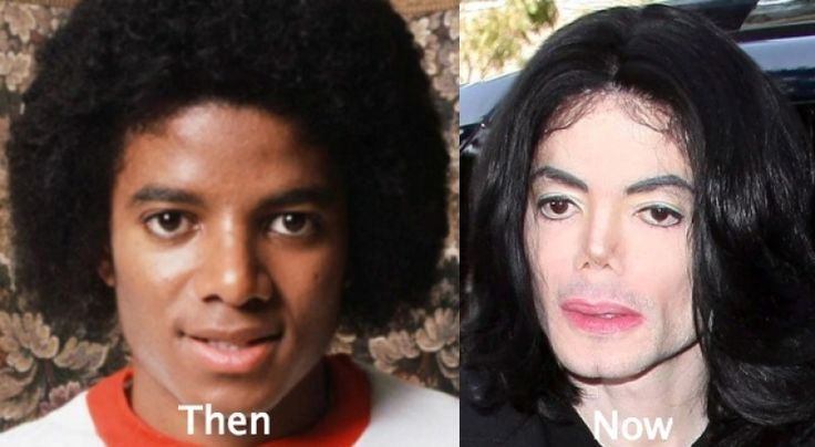 Cosmetic Surgery Gone Wrong 53 celebrity plastic surgery gone wrong before and after Worst Plastic Surgery of All Time, Celebrities Before and After Plastic Surgery,