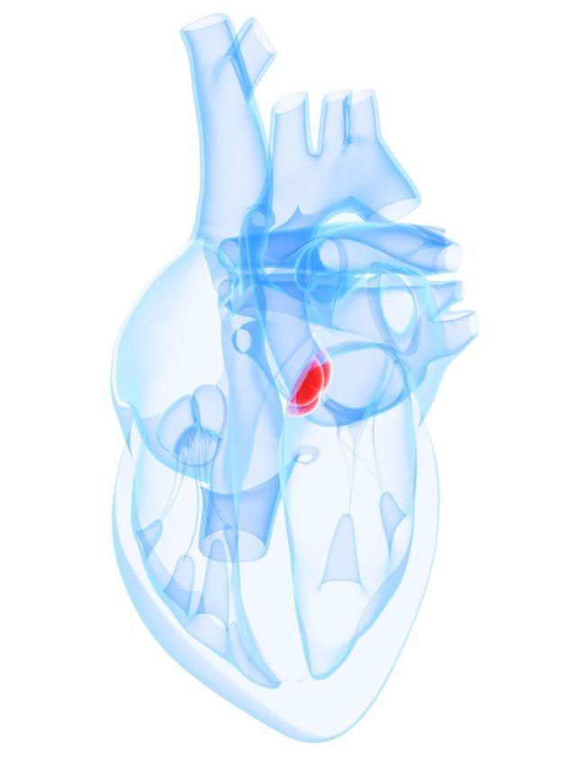 La estenosis aórtica es una lesión que afecta a la válvula aórtica. No produce síntomas cuando es leve o moderada.