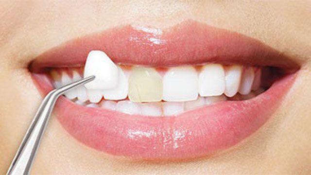 طبيبي وأكثر خطوات الصاق الفينير والزيركون للأسنان مع المواد ال Veneers