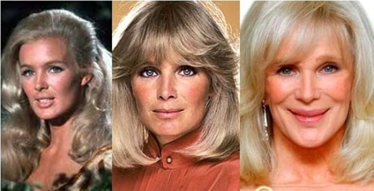 Linda Evans Plastic Surgery Before And After Celebrities