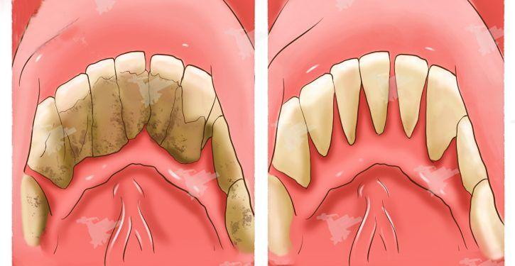 Découvrez comment éliminez le tartre accumulé sur vos dents avec ces astuces efficaces et naturelles...