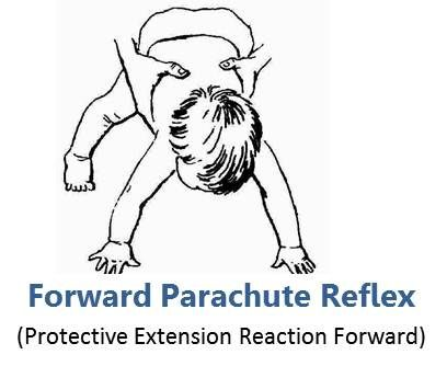 forward parachute protective extension reaction forward