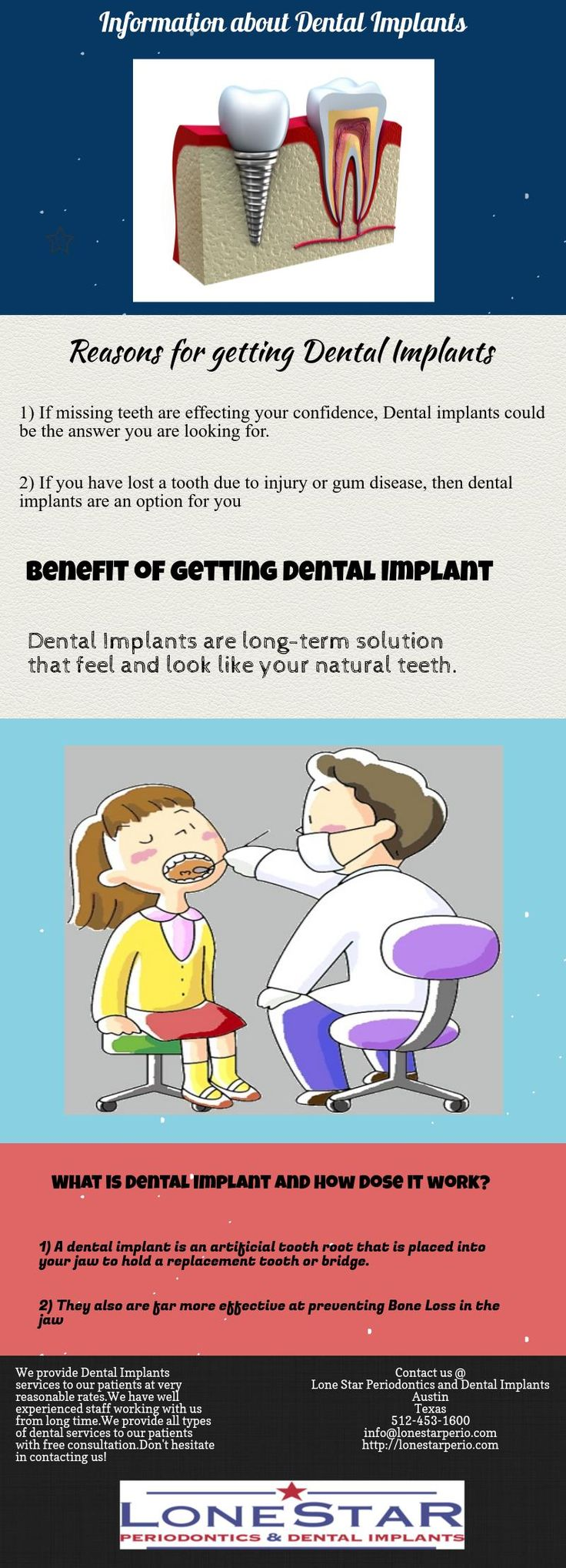 So, Are you thinking about getting Dental implants? Don't worry, check out the complete information regarding dental implants here.