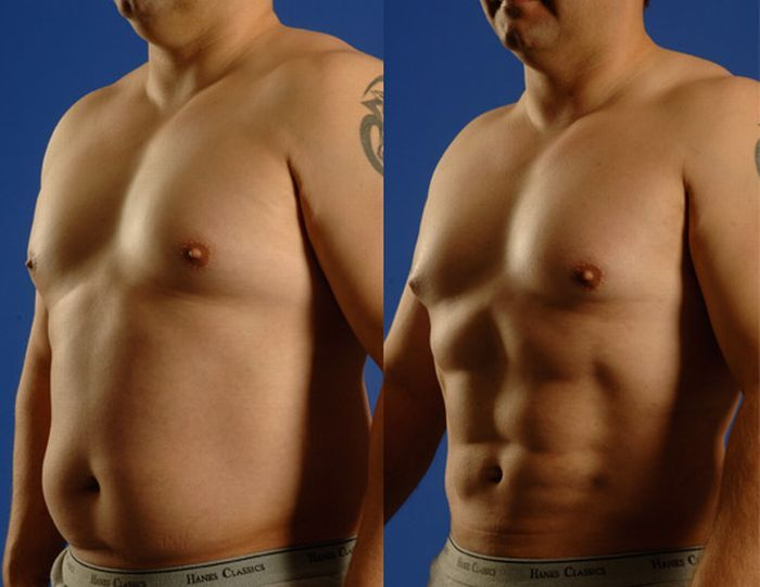 Six pack creation plastic surgery
