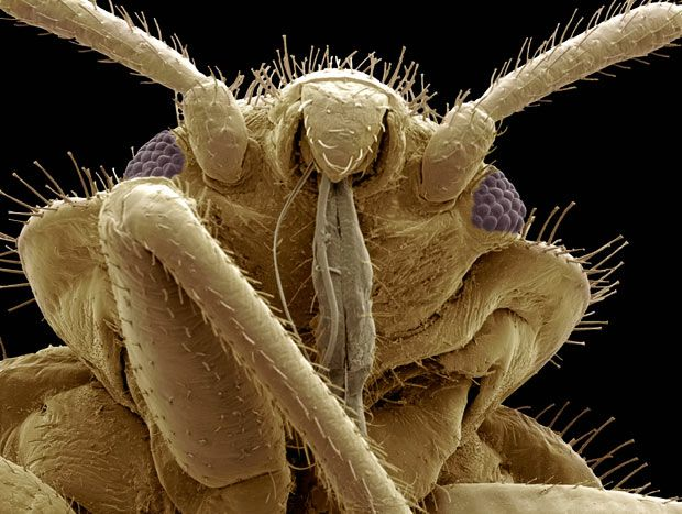 A coloured scanning electron micrograph of the head of a bedbug (Cimex sp.)  Picture: STEVE GSCHMEISSNER / SCIENCE PHOTO LIBRARY/ BARCROFT MEDIA