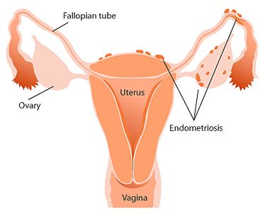 Guide for Endometriosis Causes and Preventing