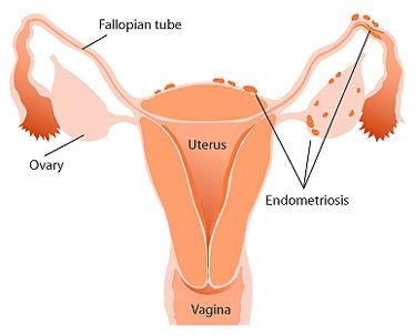Causes of Endometriosis