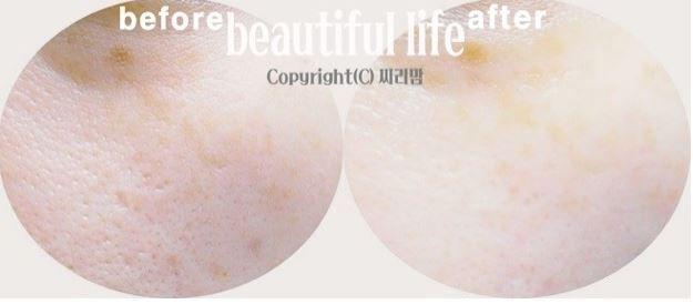 #redergen #brightening #estheticcosmetics #koreabeauty #koreacosmetics #skincare #redness #rosacea #rednessvitamincream