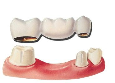 dental images - Google Search