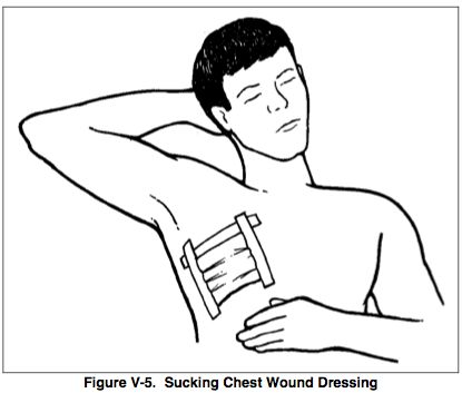 Sucking Chest Wound- Treat by using an occlusive dressing to seal wound. Signs and symptoms include subcutaneous emphysema and crepitus.