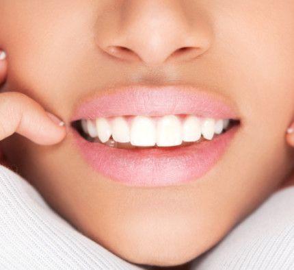 5 metodi naturali per sbiancare i denti
