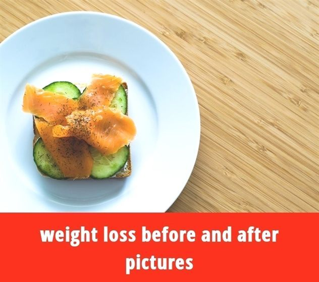 Weight Loss Before And After Pictures 95 20180911115834 55 Weight