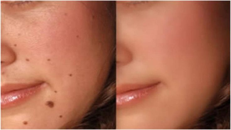 Visit us for more information: http://www.neviskinmoleremovals.com/ Mole Removal at Home  Mole Removal On Face at Home:  via